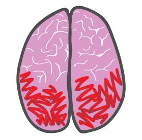 migraine 6